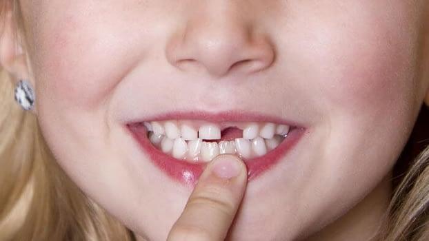Nằm mơ thấy gãy răng, rụng răng là điềm báo gì?